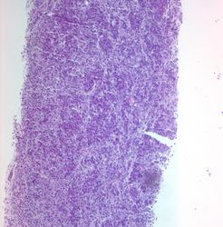 CytologicallyYoursUnknowns201312-1-04.jpg