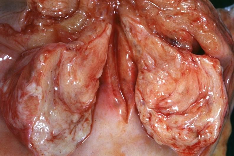 Closeup crema vaginal en la verga - 4 8