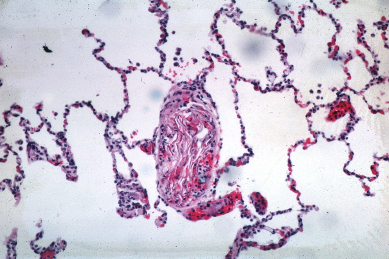HISTOLOGY RESPIRATORY Lung Amniotic Fluid Embolism Micro Med Mag HE Very Good Example Of Small Pulmonary Artery Filled With Squames