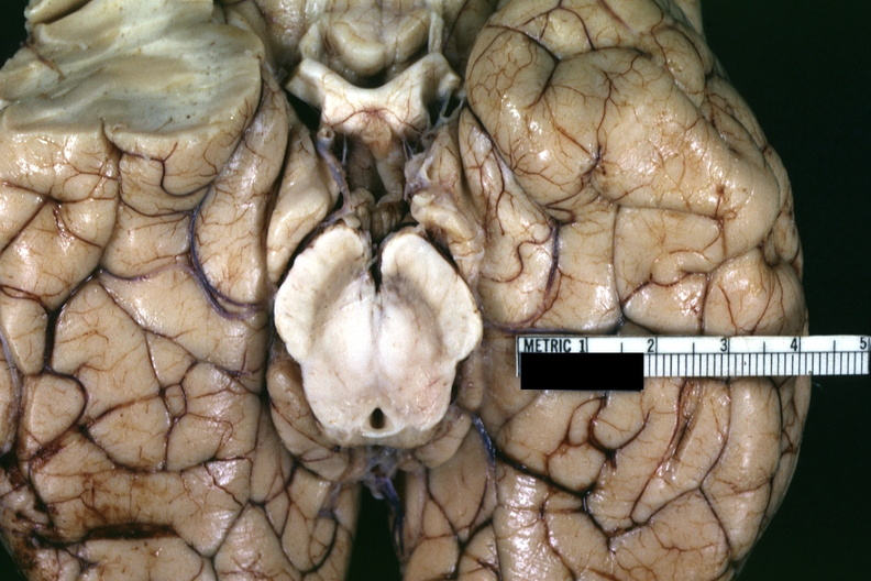 gross nervous brain herniation of uncinate processes gross fixed tissue excellent view from base of brain showing brainstem and herniated uncinate lobes