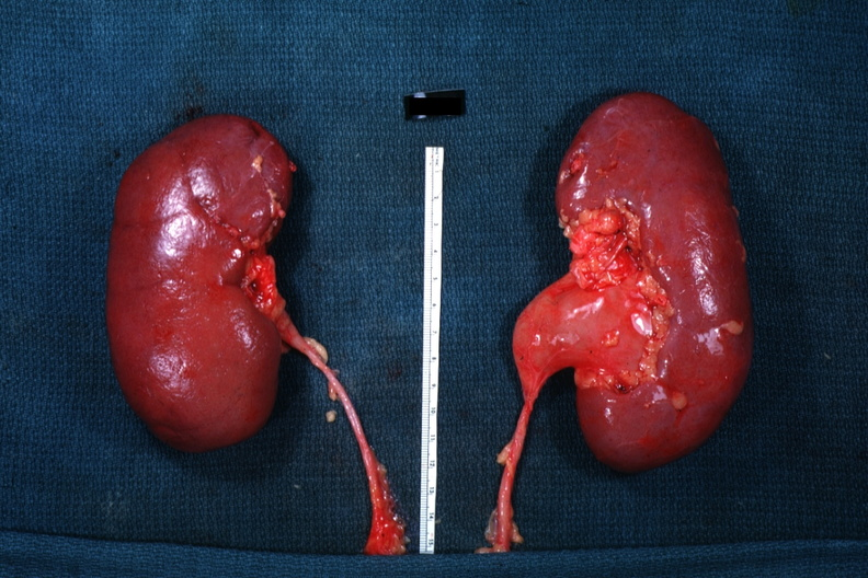 Гидронефроз у беременных 2 степени 91