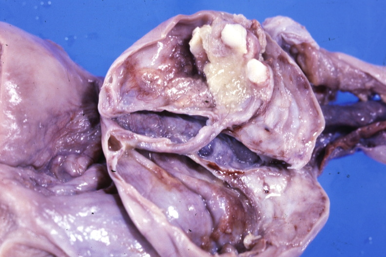 Consider, what Teratoma ovarian cyst