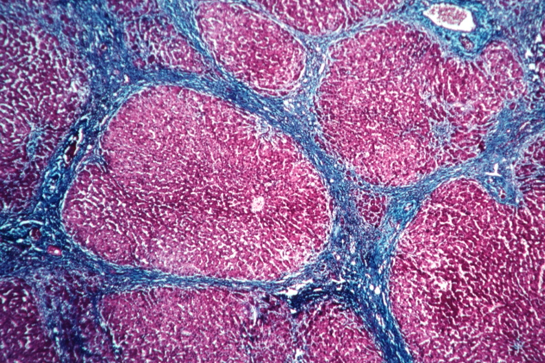 Cirrhosis Of The Liver Histology | www.pixshark.com ...