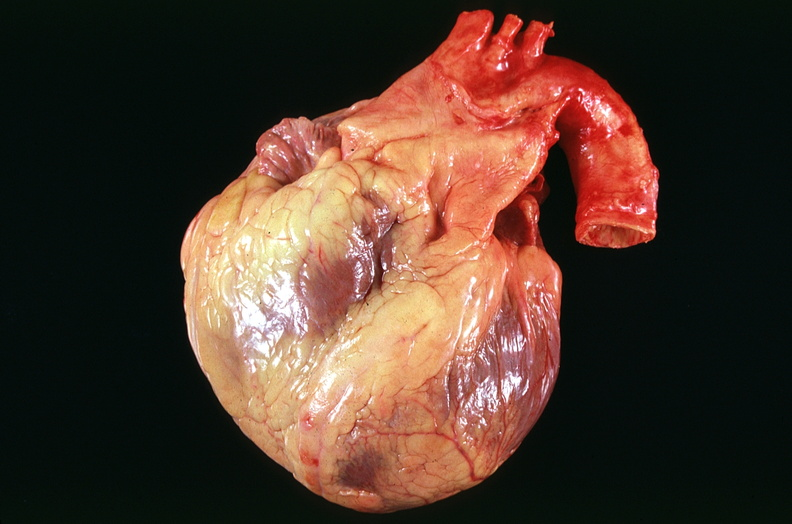 Images of diseased human heart images spacehero diseased human heart images photo 7 00017124 peir digital library ccuart Image collections