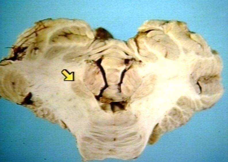 Dentate Nucleus
