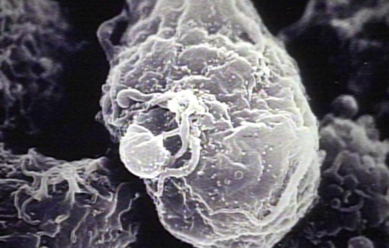 electron microscopy hiv - photo #28